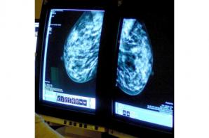 'Highly individual' DNA analysis forms basis of new approach to breast cancer